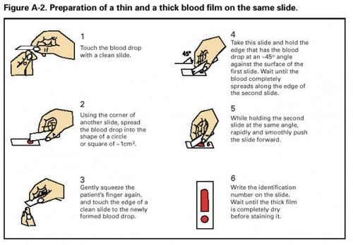 Preparation of a thin and a thick blood film on the same slide 570x397 large